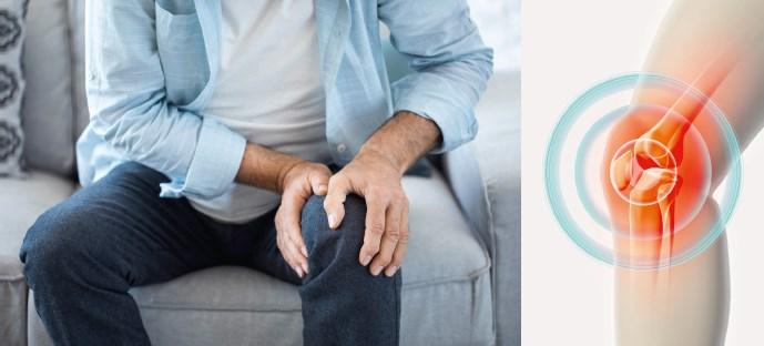 Arthrose im Kniegelenk